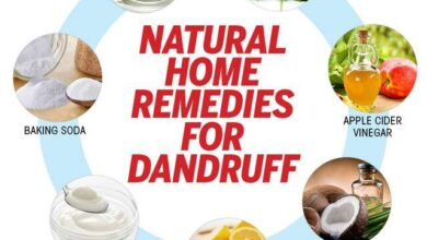 Photo of Dandruff: natural remedies to combat it